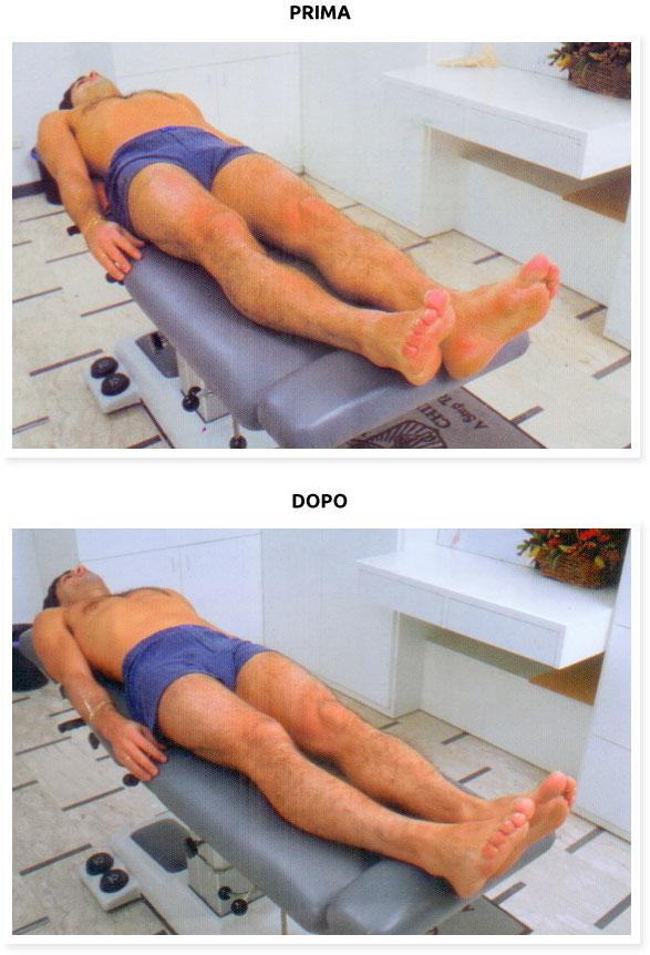 posturologia rimedi mal di schiena