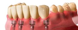 Impianti dentali San benedetto del Tronto - Lanciano