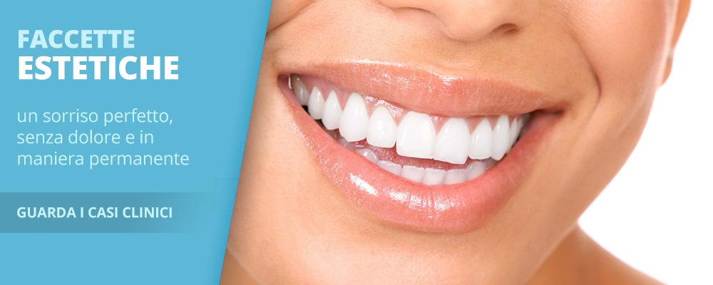 Faccette estetiche - dentista