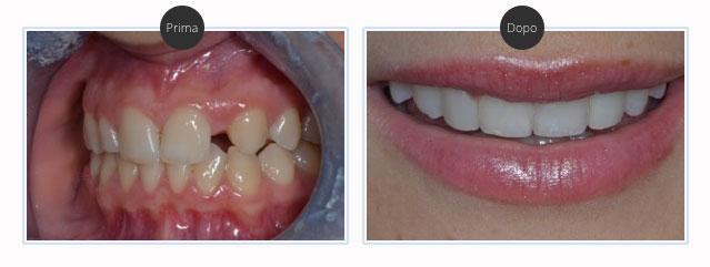 Faccette estetica dentale