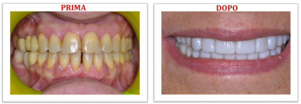 Estetica dentale - Faccette