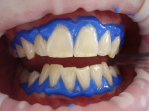 sbiancamento dentale san benedetto del tronto